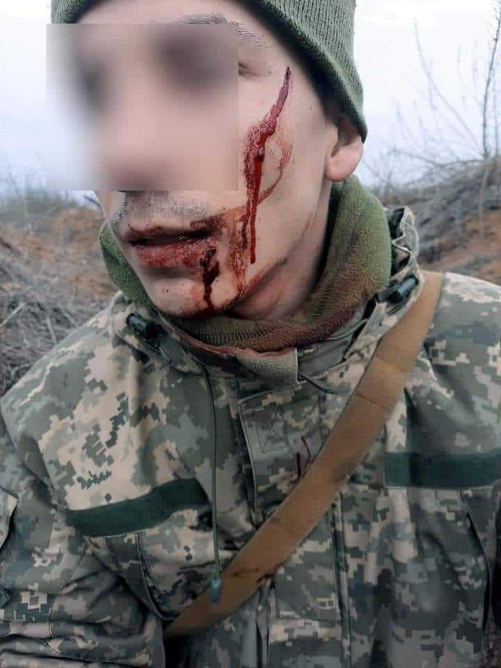 Поранення солдата від холодної зброї бойовика